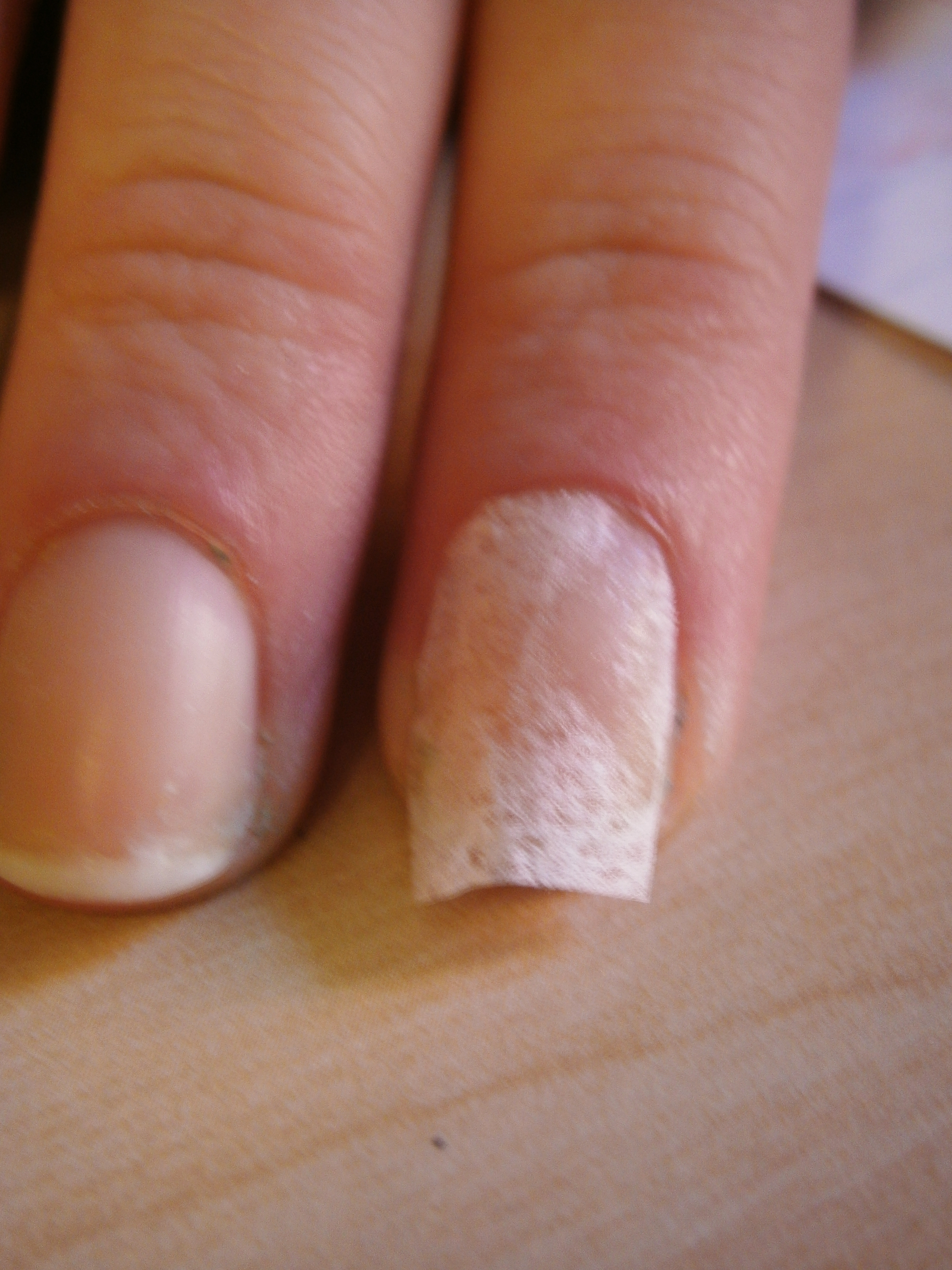 Broken Nails | Confessions of a Swatchaholic